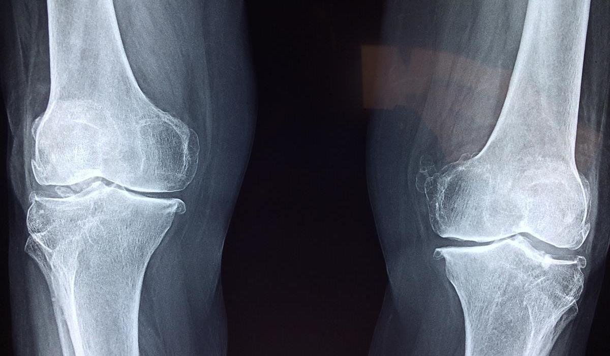 prześwietlenie kolan